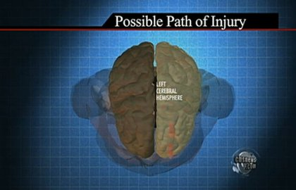 The bullet entered Giffords' head from the back, traveling through the left side of the brain, and exiting the front of her head.
