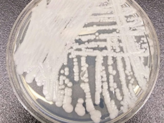 C. auris, a fungus resistant to many medications, cultured in a petri dish at a CDC laboratory.