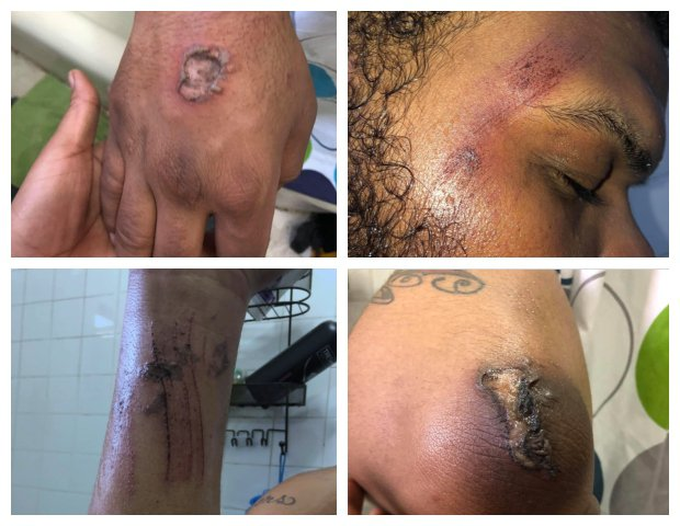 Four photos of the 20-year-old's injuries provided by his lawyer.