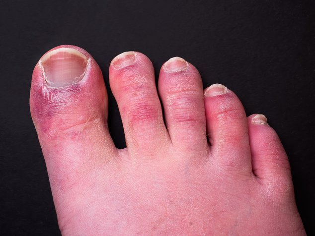 """A man's toes showing what looks like a rash with red blotchy skin. A common side effect of Covid-19 often referred to as """"Covid toe."""""""