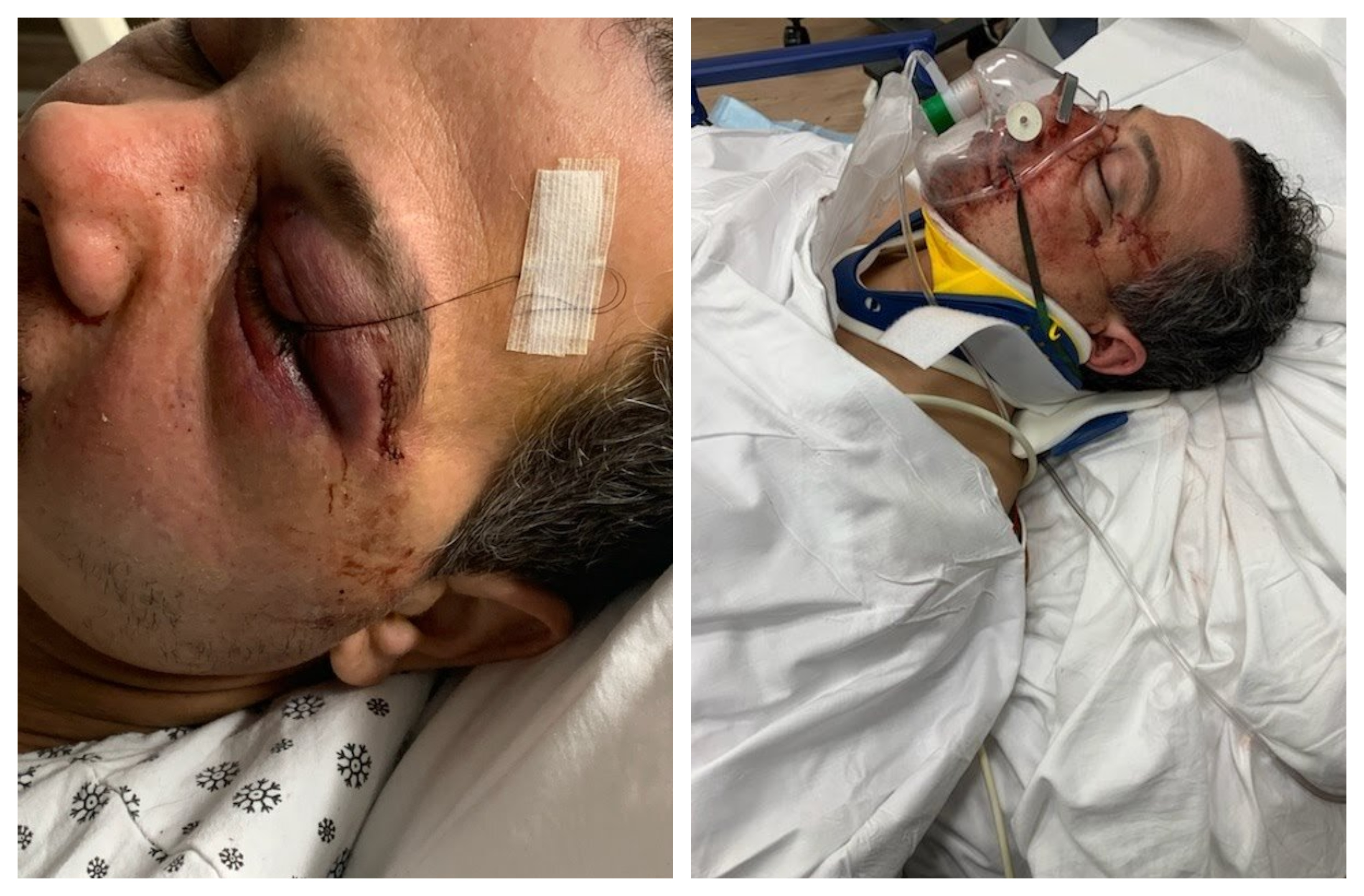 The father-of-two seen in a hospital photo with injuries to his face and neck.